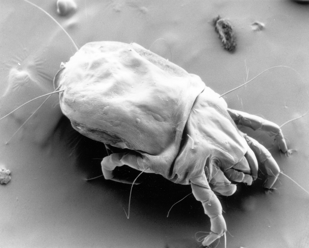 Mite Picture from Wikipedia Source